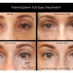 2019 ThermaDerm Full Eyes Treatment - 04a